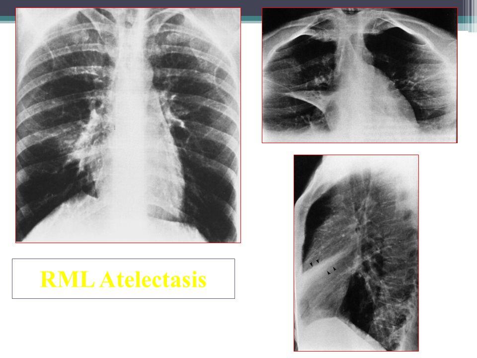 RML Atelectasis