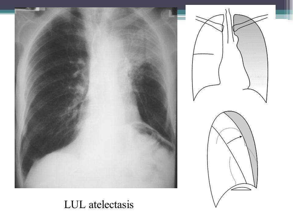 LUL atelectasis