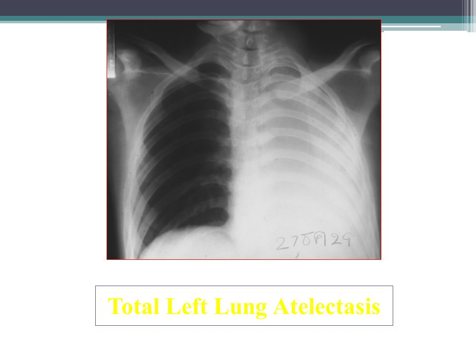 Total Left Lung Atelectasis