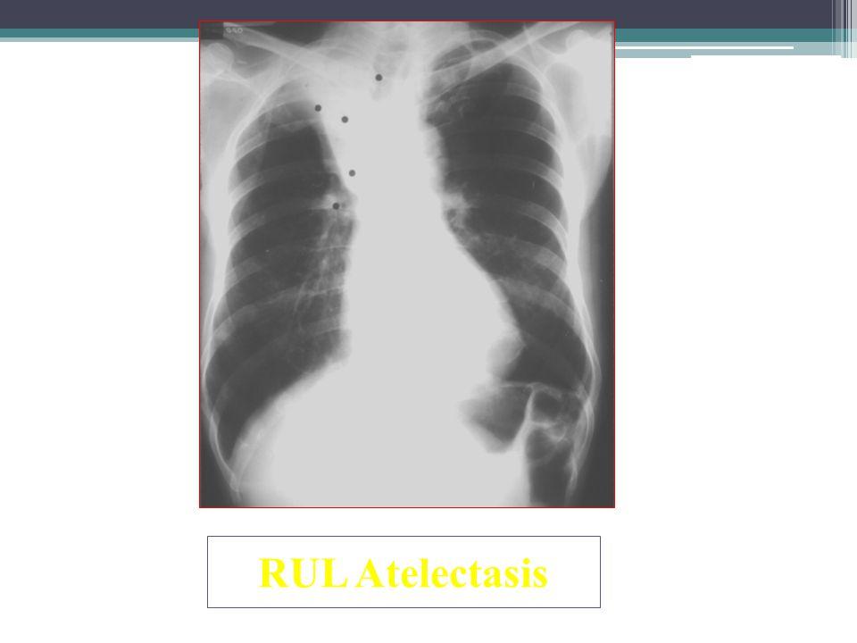 RUL Atelectasis