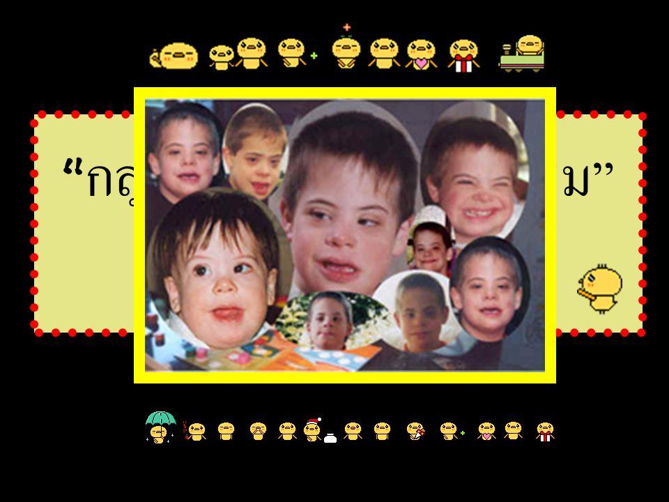 กลุ่มอาการดาวน์ซินโดรม (Down Syndrome)