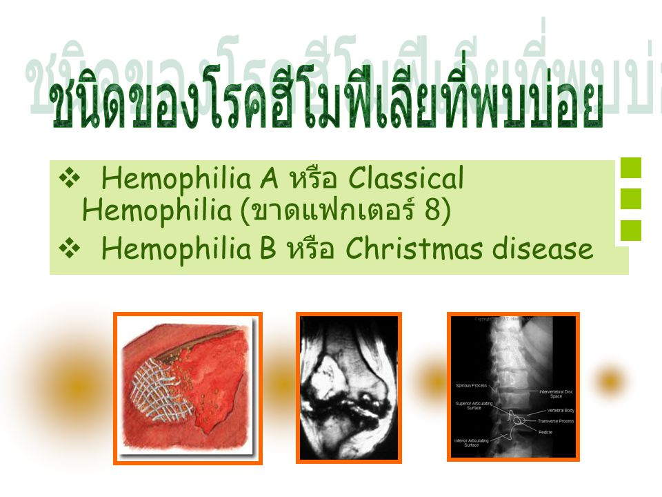 ชนิดของโรคฮีโมฟีเลียที่พบบ่อย
