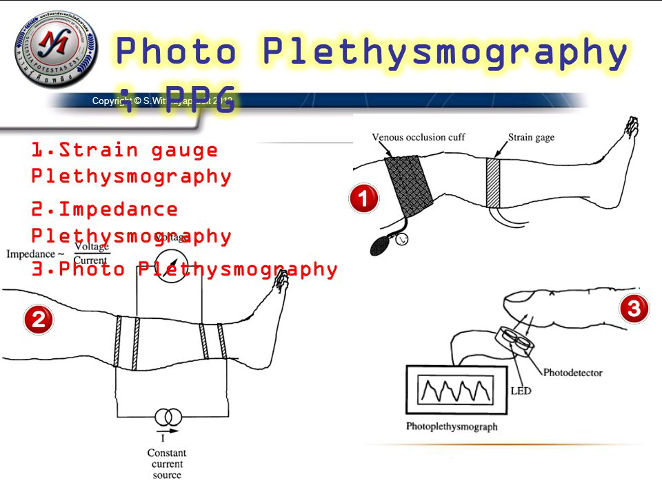 Photo Plethysmography ; PPG