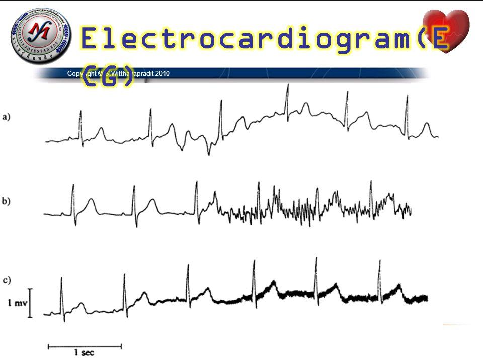 Electrocardiogram(ECG)