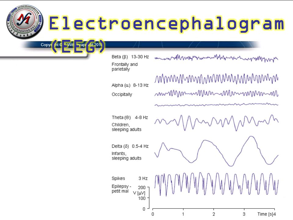Electroencephalogram(EEG)