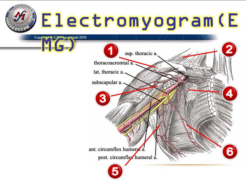 Electromyogram(EMG) Copyright © S.Witthayapradit 2010