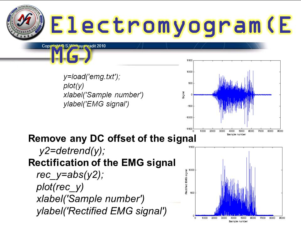 Electromyogram(EMG) Remove any DC offset of the signal y2=detrend(y);