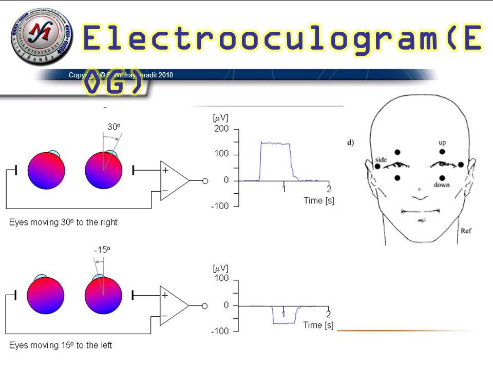 Electrooculogram(EOG)