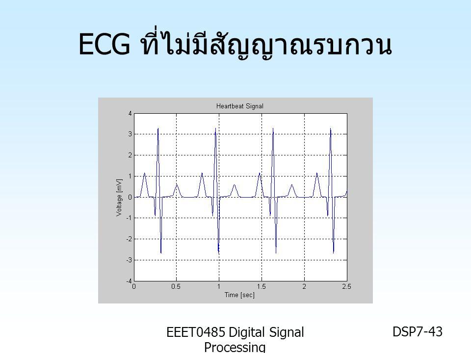 ECG ที่ไม่มีสัญญาณรบกวน