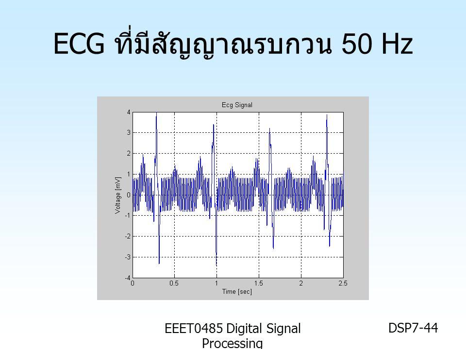ECG ที่มีสัญญาณรบกวน 50 Hz
