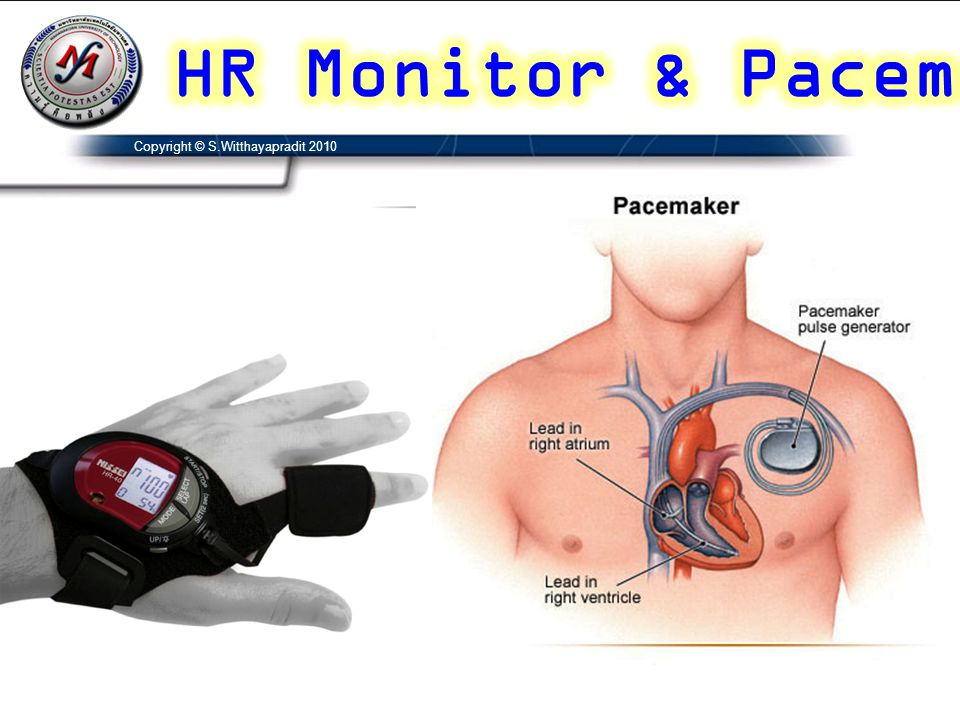 HR Monitor & Pacemaker Copyright © S.Witthayapradit 2010