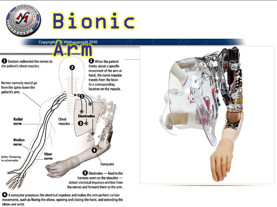 Bionic Arm Copyright © S.Witthayapradit 2010