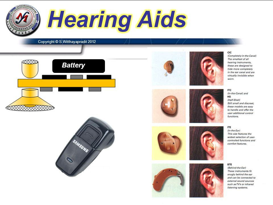 Hearing Aids Copyright © S.Witthayapradit 2012 Battery