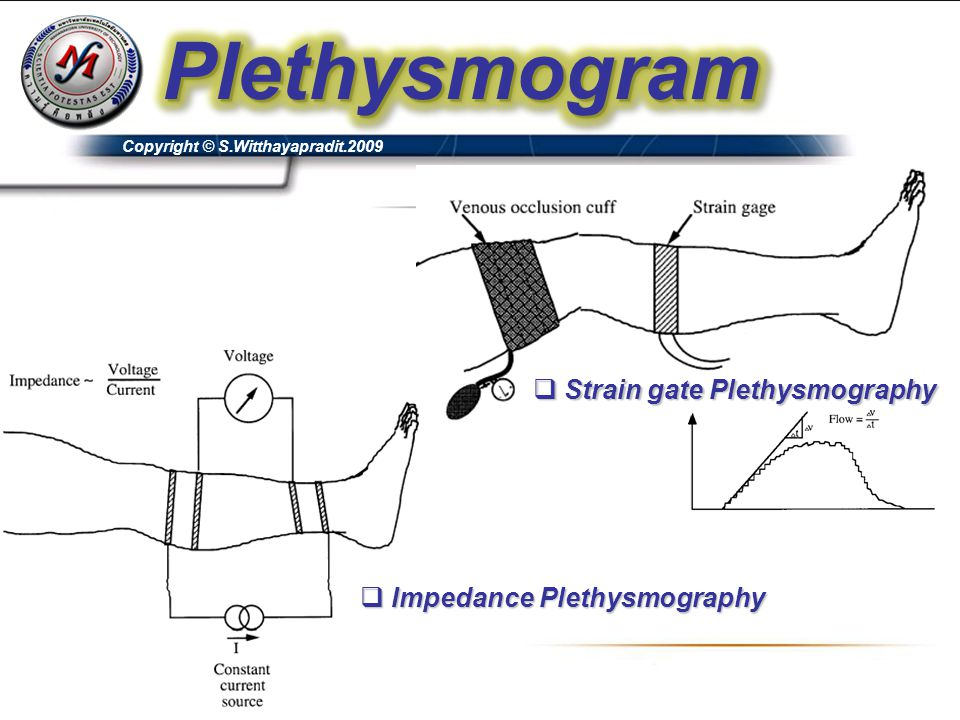 Strain gate Plethysmography Impedance Plethysmography