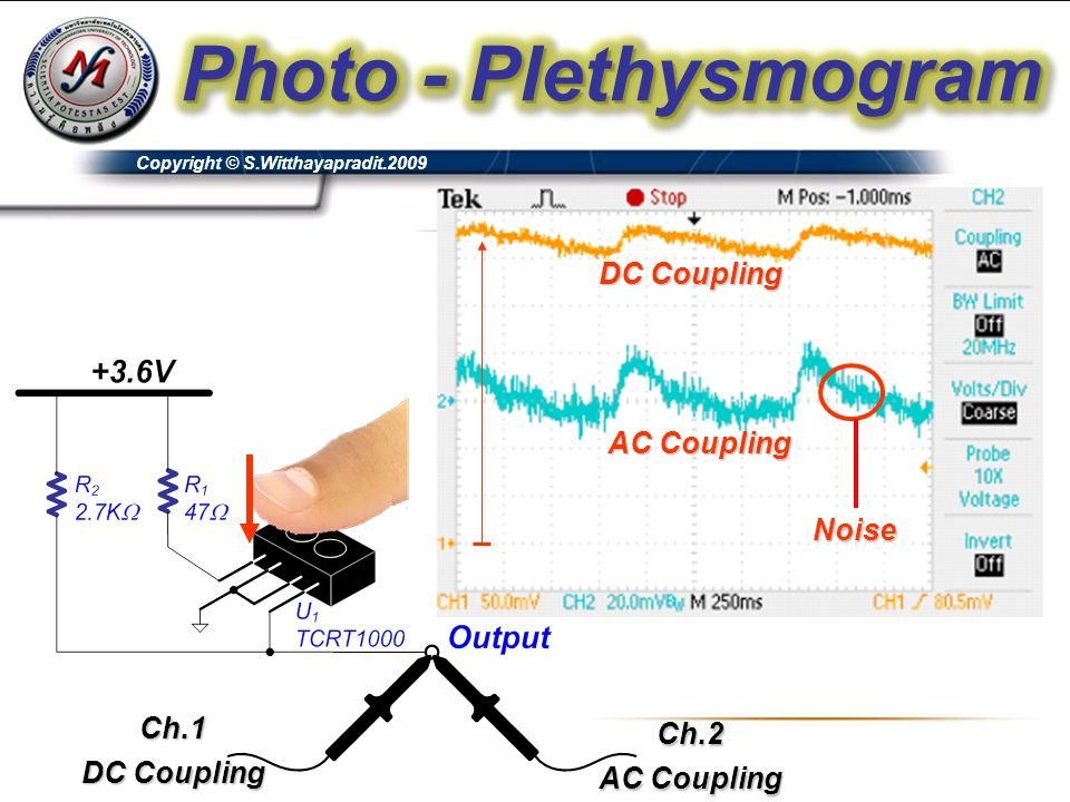 Photo - Plethysmogram DC Coupling AC Coupling Noise Ch.1 Ch.2