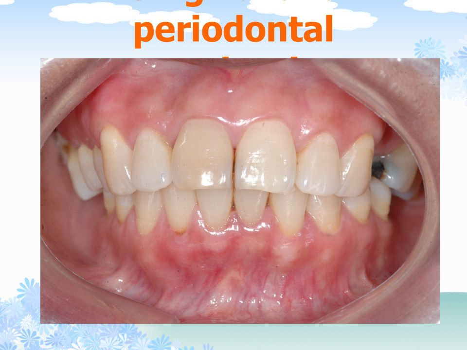 Gingival and periodontal examination
