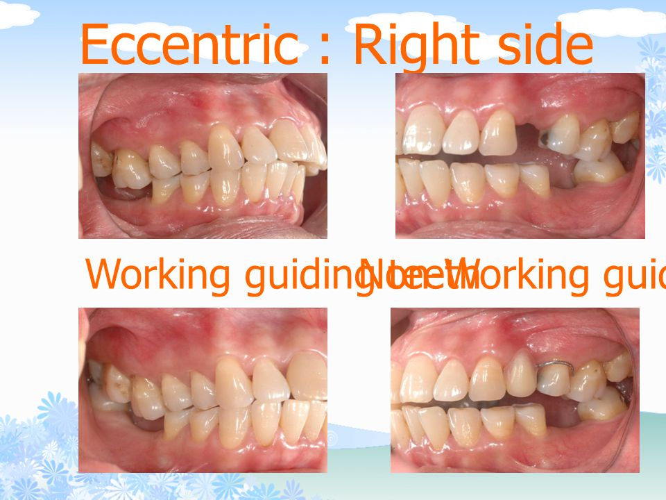 Eccentric : Right side Working guiding teeth Non-Working guiding teeth