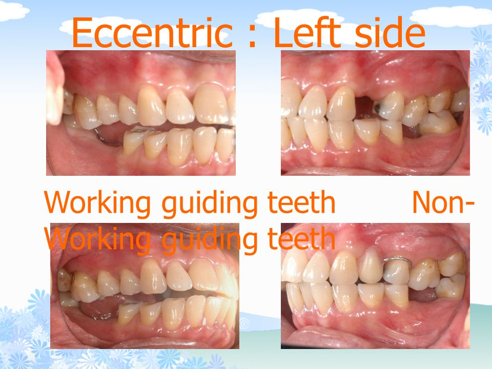 Eccentric : Left side Working guiding teeth Non-Working guiding teeth