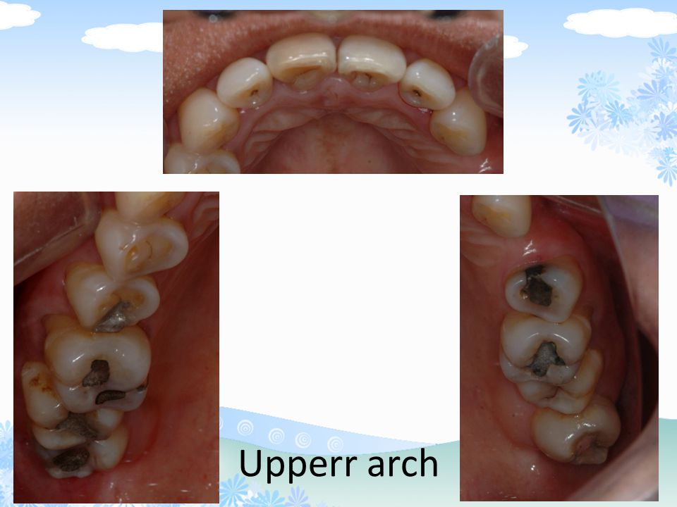 PQ4 Upperr arch