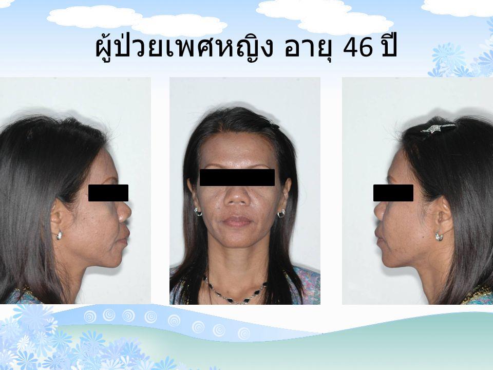 ผู้ป่วยเพศหญิง อายุ 46 ปี