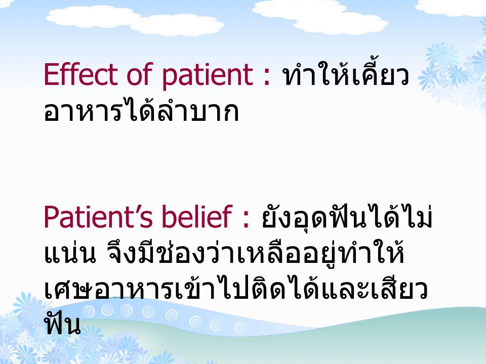 Effect of patient : ทำให้เคี้ยวอาหารได้ลำบาก