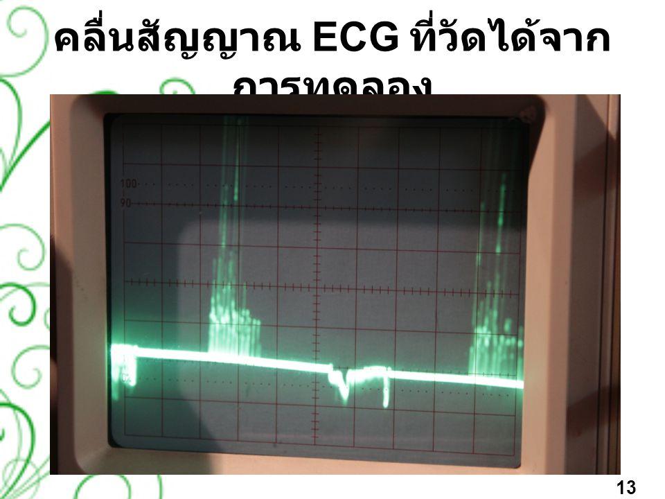 คลื่นสัญญาณ ECG ที่วัดได้จากการทดลอง