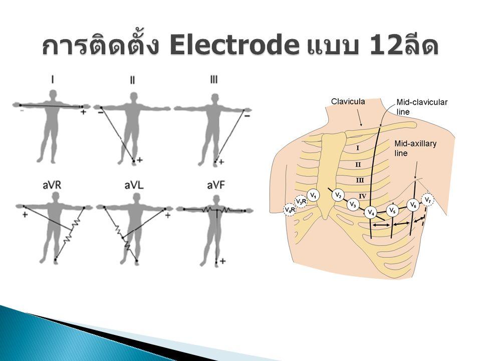 การติดตั้ง Electrode แบบ 12ลีด