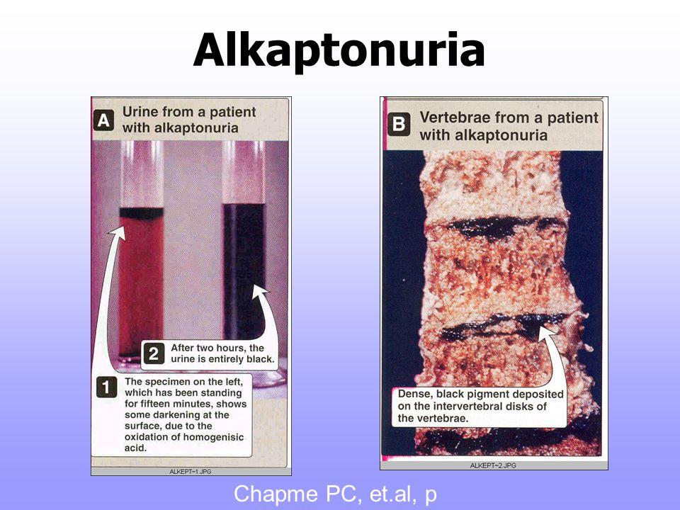 Alkaptonuria Chapme PC, et.al, p 272, 2005