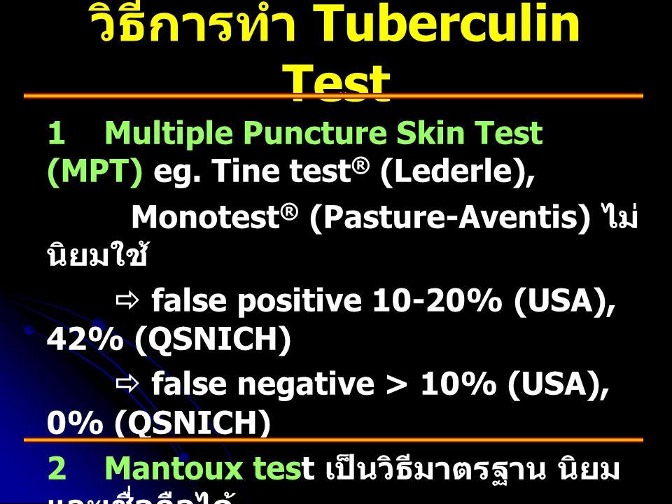 วิธีการทำ Tuberculin Test