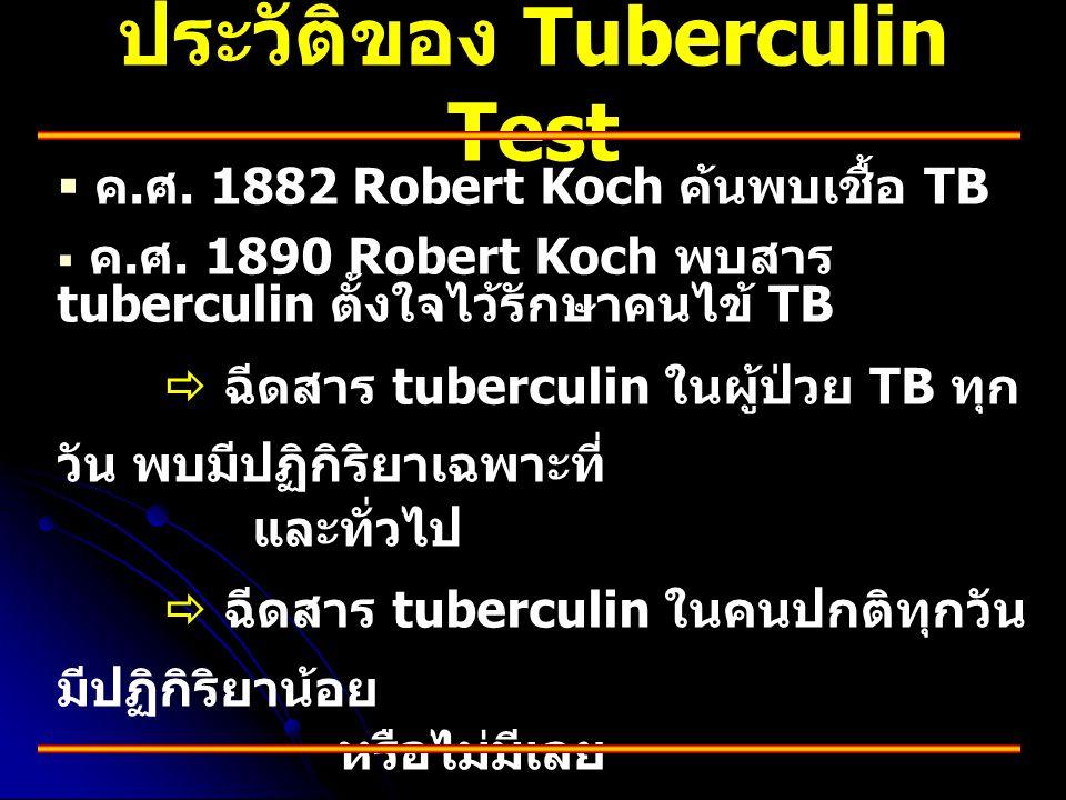 ประวัติของ Tuberculin Test