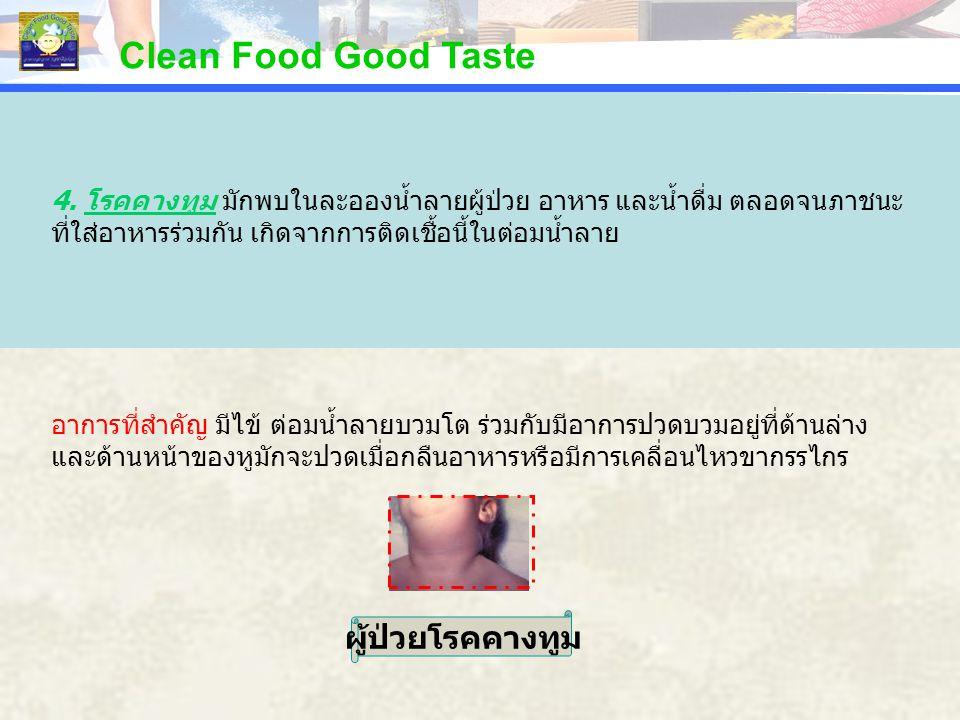 Clean Food Good Taste ผู้ป่วยโรคคางทูม