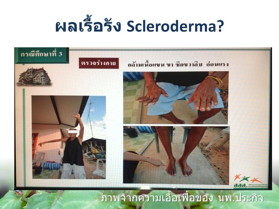 ผลเรื้อรัง Scleroderma