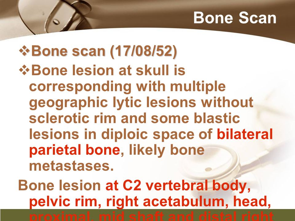 Bone Scan Bone scan (17/08/52)