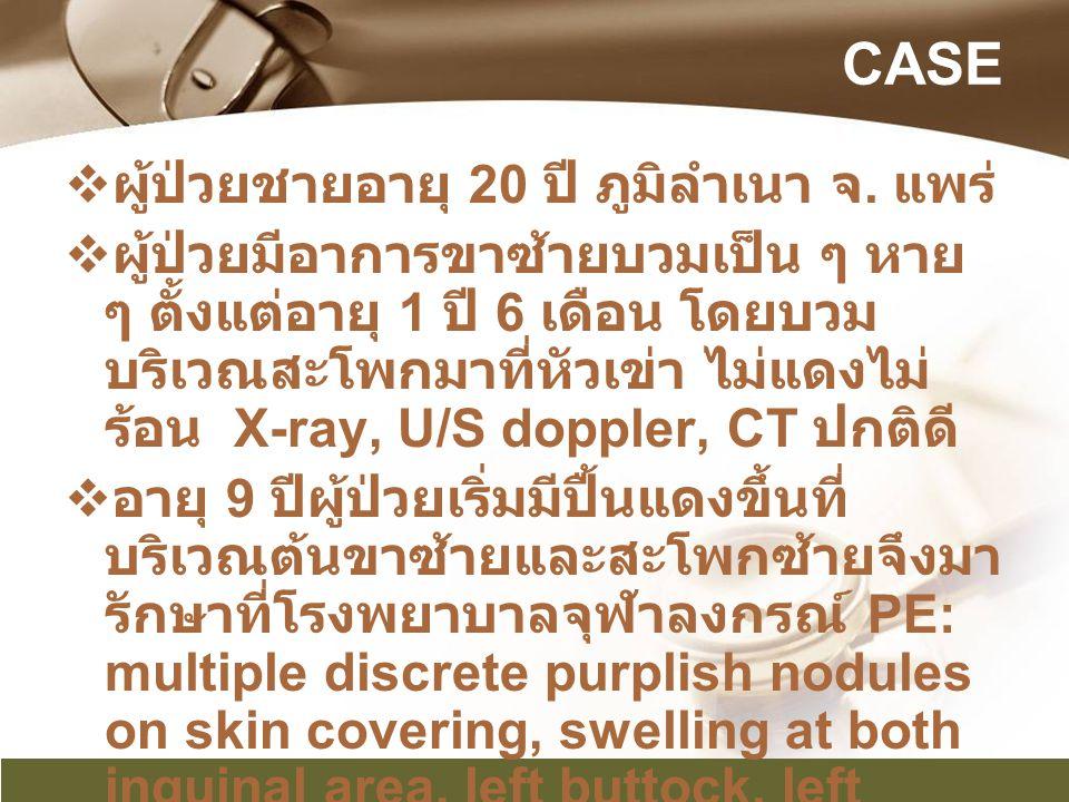 CASE ผู้ป่วยชายอายุ 20 ปี ภูมิลำเนา จ. แพร่