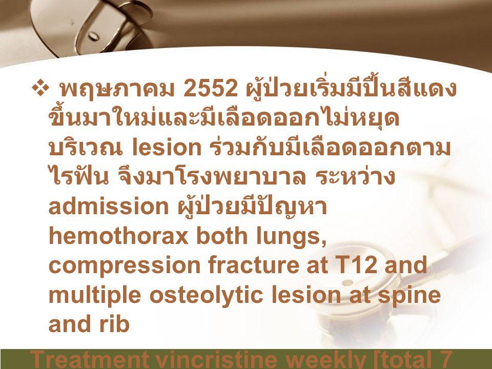 พฤษภาคม 2552 ผู้ป่วยเริ่มมีปื้นสีแดงขึ้นมาใหม่และมีเลือดออกไม่หยุดบริเวณ lesion ร่วมกับมีเลือดออกตามไรฟัน จึงมาโรงพยาบาล ระหว่าง admission ผู้ป่วยมีปัญหา hemothorax both lungs, compression fracture at T12 and multiple osteolytic lesion at spine and rib