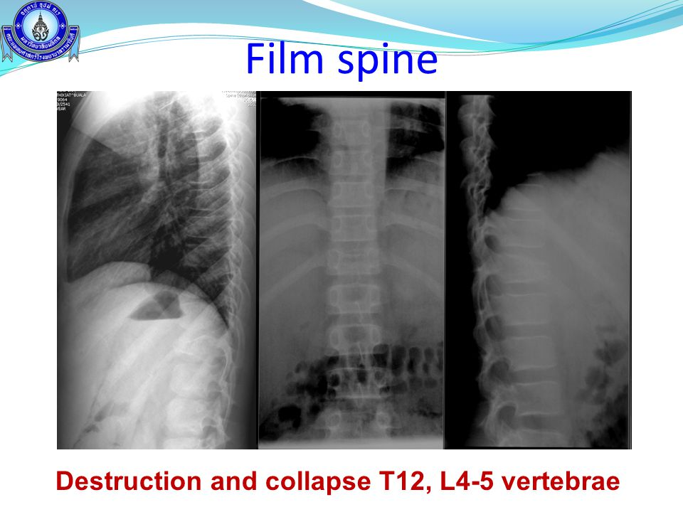 Destruction and collapse T12, L4-5 vertebrae