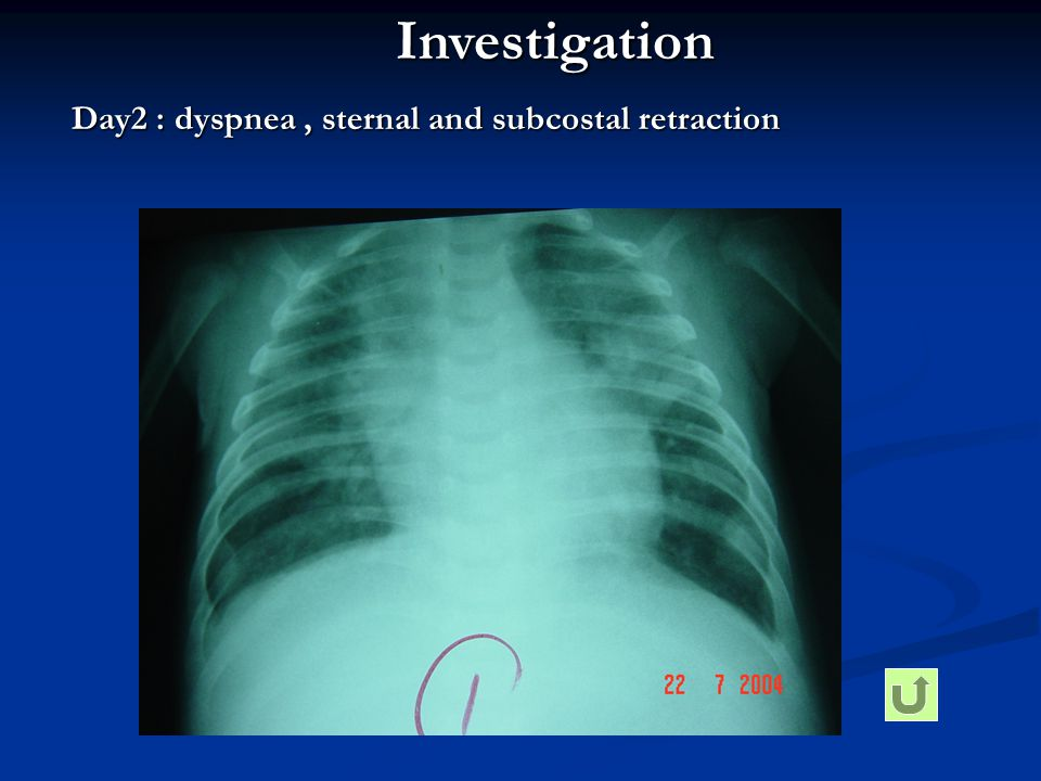 Investigation Day2 : dyspnea , sternal and subcostal retraction