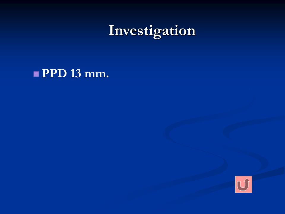 Investigation PPD 13 mm.