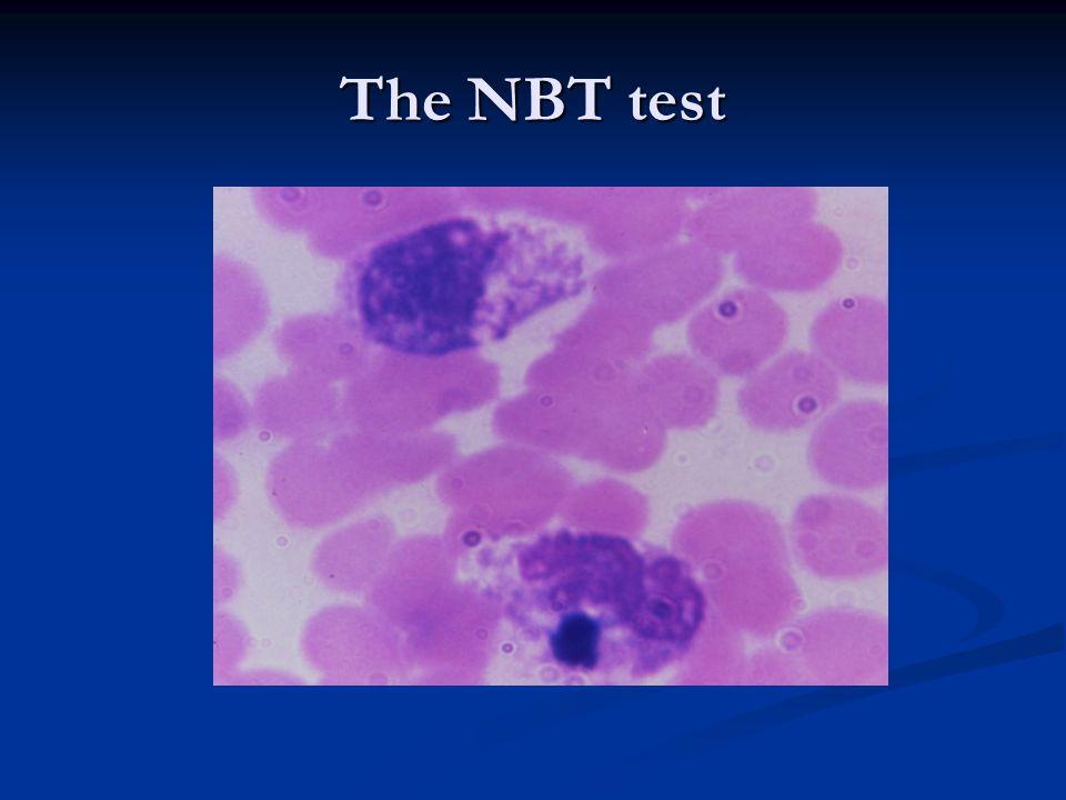The NBT test