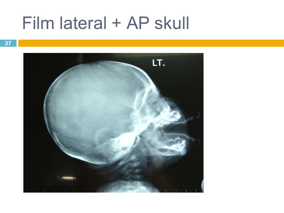 Film lateral + AP skull 27