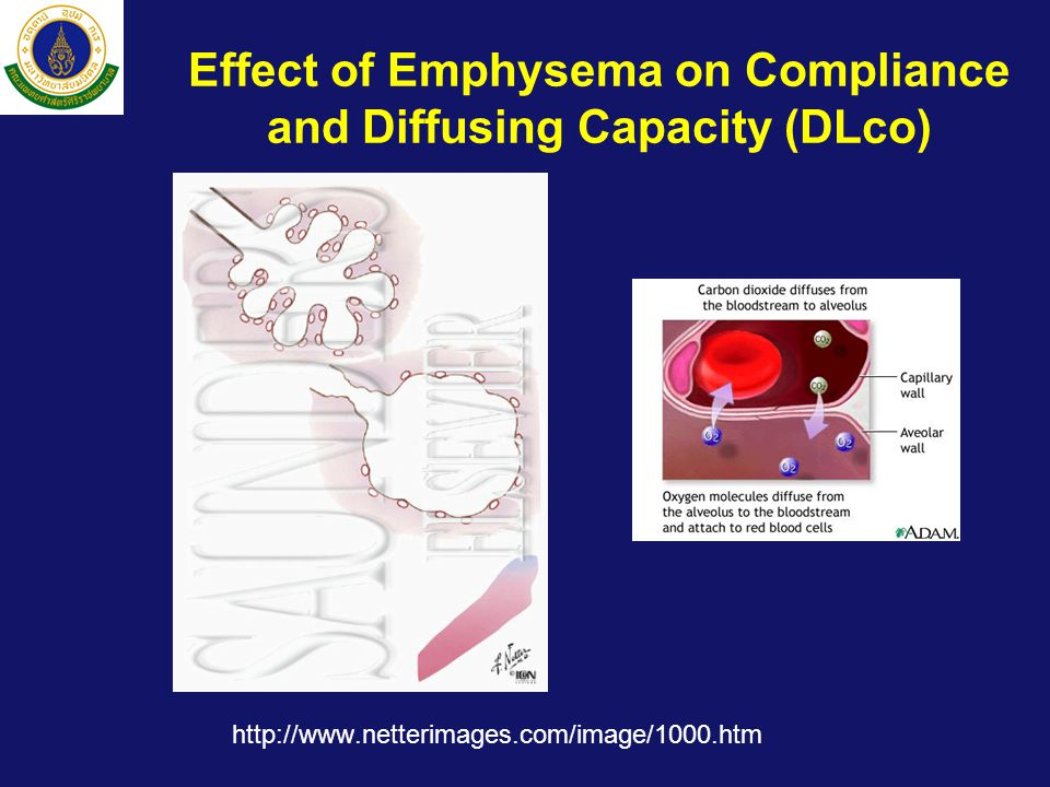 Effect of Emphysema on Compliance and Diffusing Capacity (DLco)
