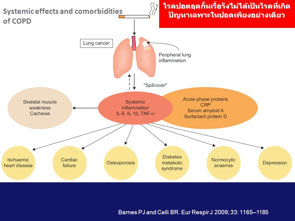 Systemic effects and comorbidities of COPD
