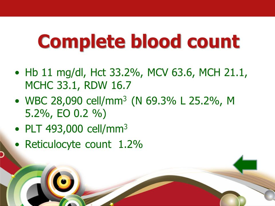 Complete blood count Hb 11 mg/dl, Hct 33.2%, MCV 63.6, MCH 21.1, MCHC 33.1, RDW 16.7. WBC 28,090 cell/mm3 (N 69.3% L 25.2%, M 5.2%, EO 0.2 %)