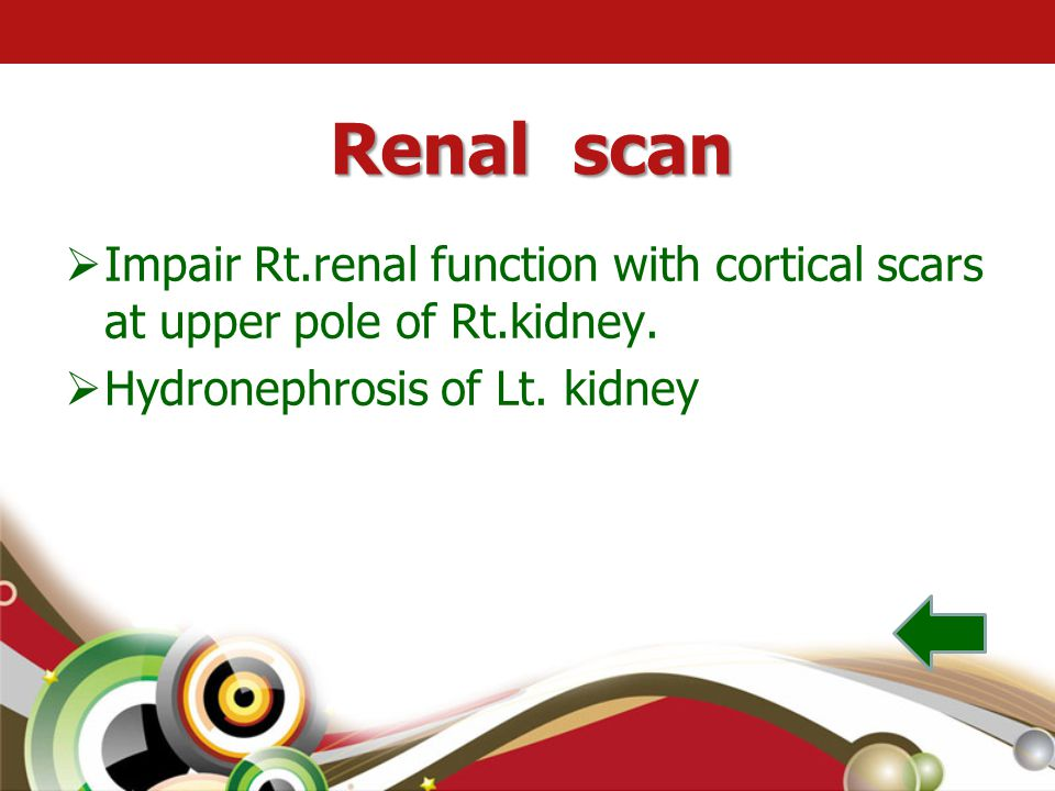 Renal scan Impair Rt.renal function with cortical scars at upper pole of Rt.kidney.