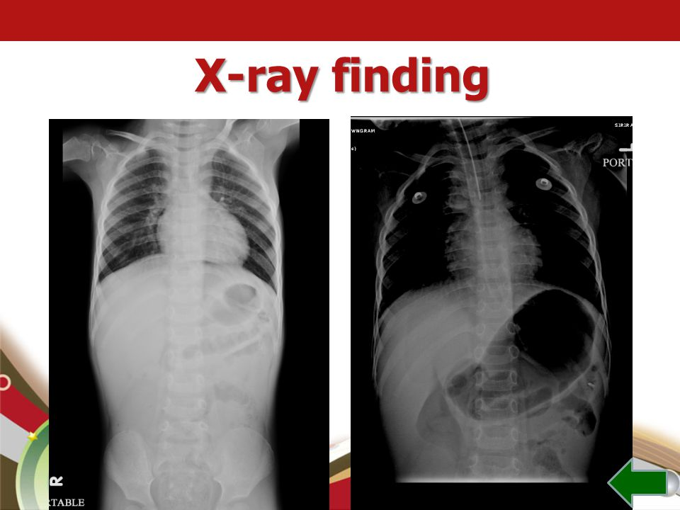 X-ray finding