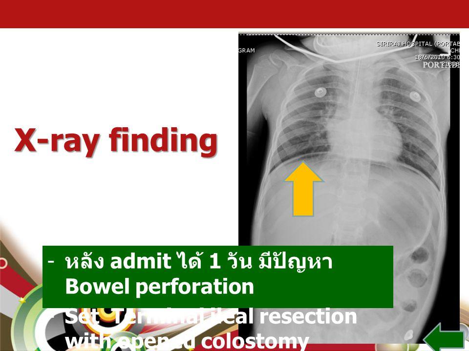 X-ray finding หลัง admit ได้ 1 วัน มีปัญหา Bowel perforation