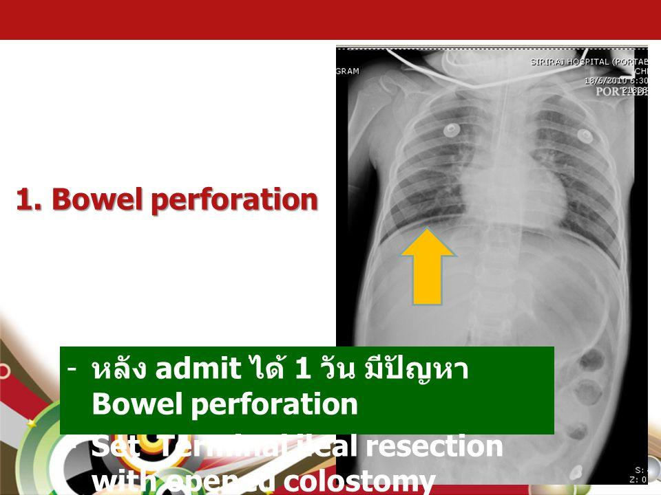 1. Bowel perforation หลัง admit ได้ 1 วัน มีปัญหา Bowel perforation.