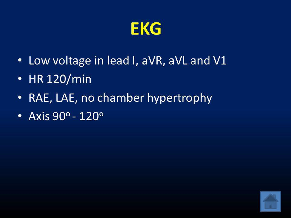 EKG Low voltage in lead I, aVR, aVL and V1 HR 120/min