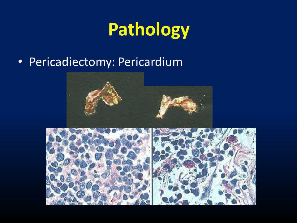 Pathology Pericadiectomy: Pericardium