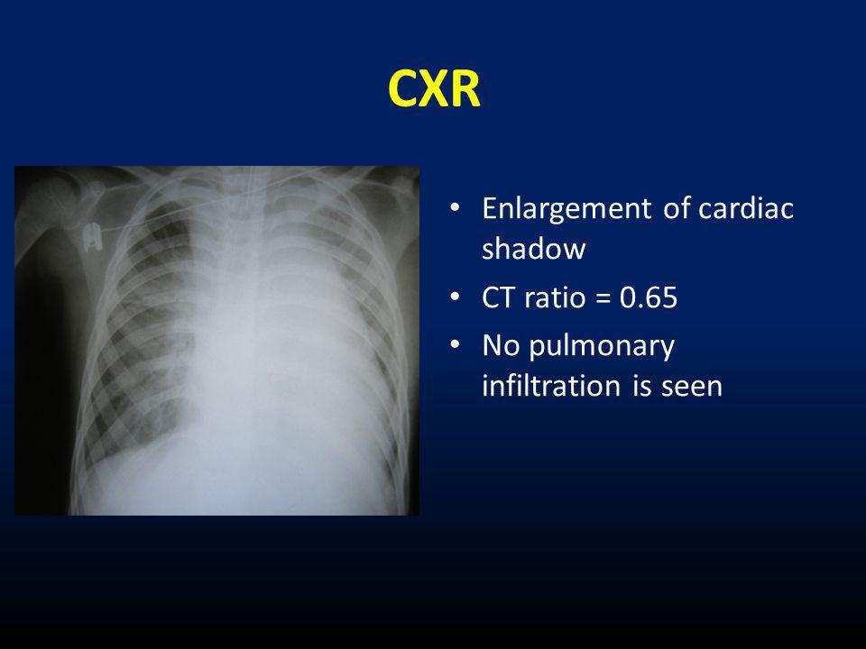 CXR Enlargement of cardiac shadow CT ratio = 0.65